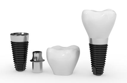 wybielanie zębów cennik kraków